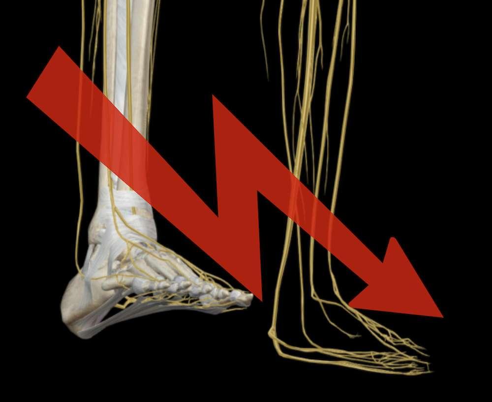 Bänderrisse, Knochenbrüche, Sprunggelenk mittels Osteopathie ganzheitlich behandeln